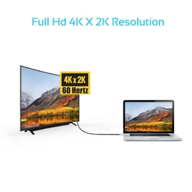 Supports Ultra HD 4K Video And Audio Output