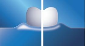 تبييض أفضل ٧ مرات للأسنان